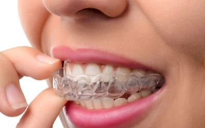 Advantages of Invisalign® over traditional braces.